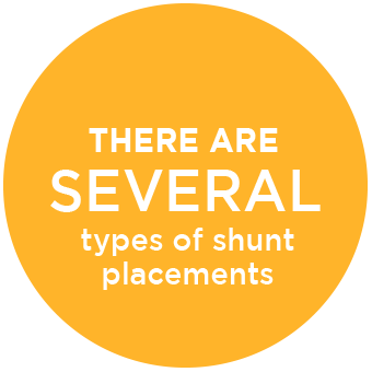 There are Several Types of Shunts