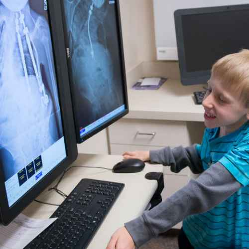 Gillette patient Joshua viewing x-rays of spine