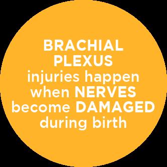 brachial plexus injury birth - photo #35