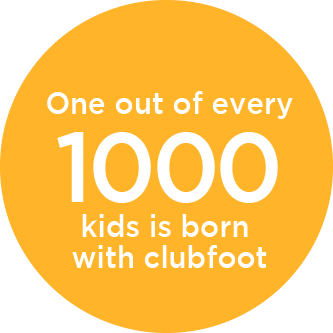 Assessing Children with Clubfoot