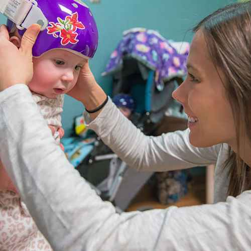 orthotics provider fits Gillette patient with CranioCap orthosis