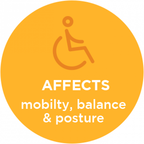 Cerebral Palsy Affects Mobility, Balance and Posture