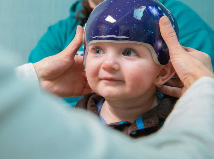 Orion Gillette plagiocephaly patient during craniocap fitting