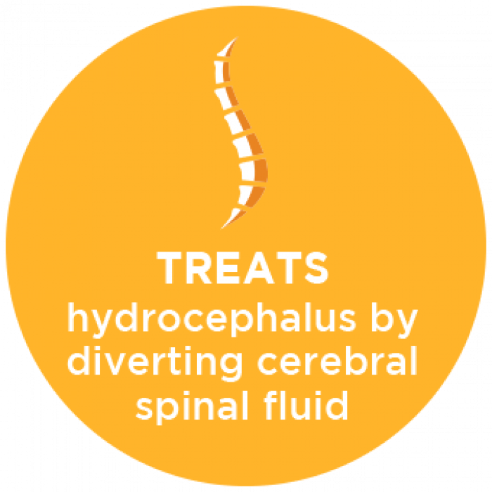 Treats Hydrocephalus By Diverting Spinal Fluid