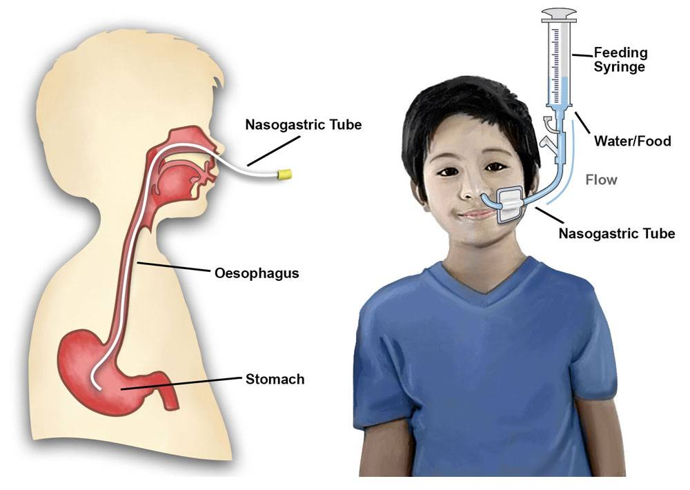 nasogastric tube illustration of how food/water travels to stomach