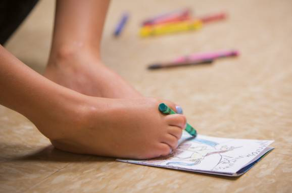 Gillette Children's patient Ruth Evelyn, born without arms uses her feet to color a picture