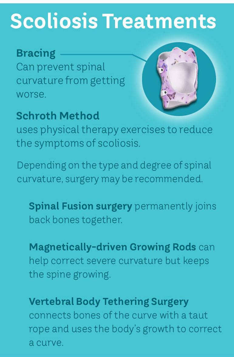Scoliosis treatment options