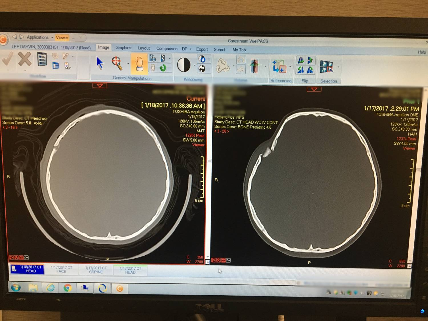 CT Scan of Dayvin's Head Before and After Surgery