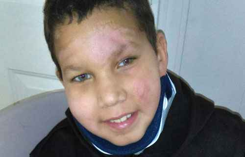 8-year-old Yael Rodriguez was struck by the car. The family says he is in the intensive care unit at Gillette Children's Specialty Healthcare in St. Paul with multiple broken bones and possible damage to his brain and spine.