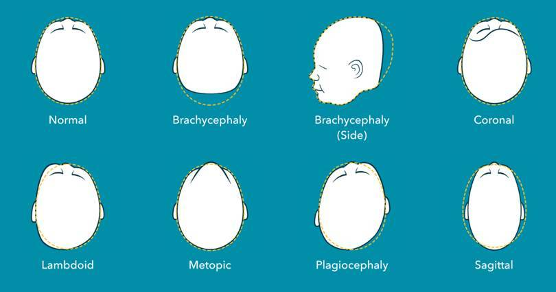 deformational plagiocephaly flat head syndrome examples
