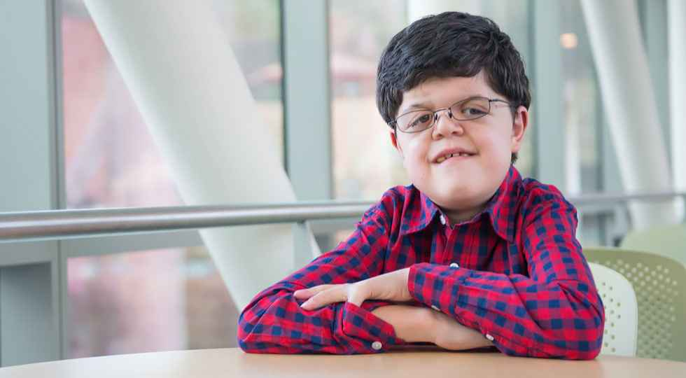 Michael, Apert Syndrome patient at Gillette Children's Specialty Healthcare