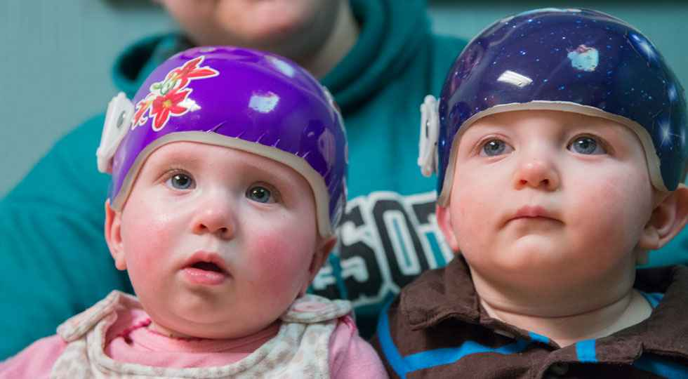 Twins Teegan and Orion wearing the Gillette CranioCap orthosis (baby helmet).