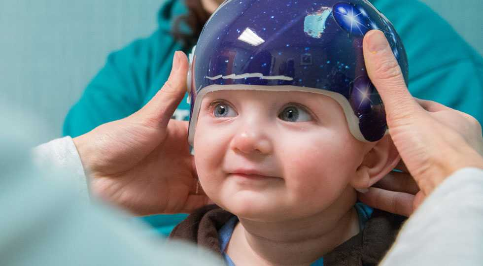 Gillette patient Orion wearing a CranioCap