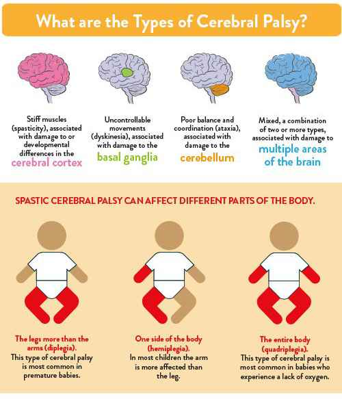 infographic - what are the types of cerebral palsy?