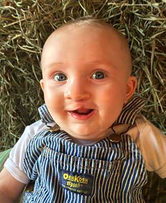 Cade's mom says today she barely notices he once had a cleft lip.