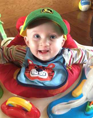 At 4 months old, Cade underwent cleft lip correction surgery.