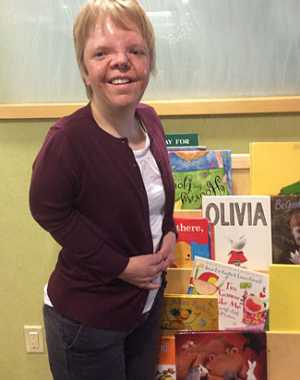 Krista Horning is a Gillette employee who has Apert syndrome.